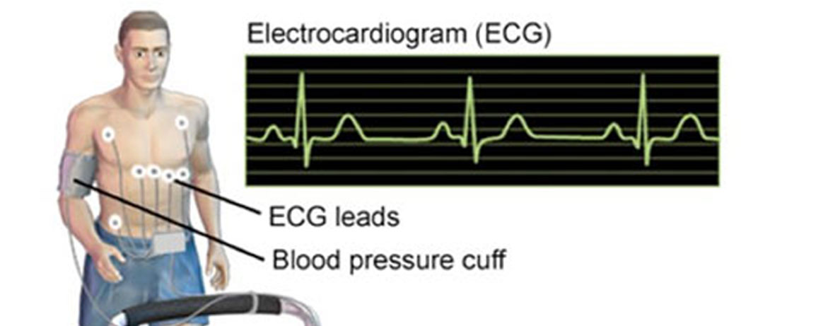 Stress Echocardiogram